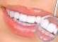 отбеливание зубов перекисью+отбеливание зубов перекисью водорода6