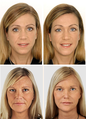 мезотерапия лица3