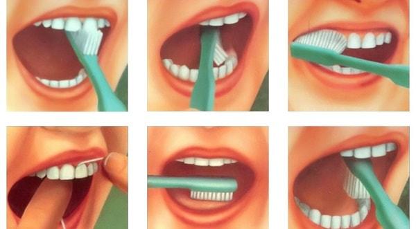 foto kak pravil'no chistit zuby 10